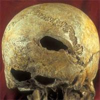 Следы на черепе от многочисленных мощных ударов. Фото