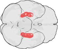 Лишение сна ограничивает деятельность зоны мозга, названную