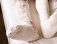 Из-за верности жениху невеста сломала ногу