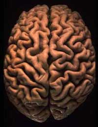 Единственный шанс спасти мозг от слабоумия