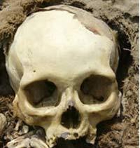 Самой ужасающей находкой оказался череп со сквозным пулевым