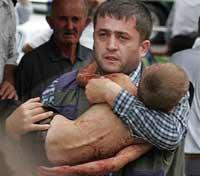 Во Владикавказе оглашают причины увечий выживших бесланских