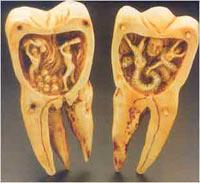 Когда на зубах появляются пятна?