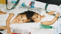 17 первых месяцев своей жизни маленькие жители Филлипин Карл и Кларенс Агирре были неразрывны — сиамские близнецы срослись головами… Местные врачи сказали их матери: чтобы сделать операцию по разделению братьев, ей надо сначала сделать выбор — кто из них будет жить, а кто умрет… Но ровно десять лет назад, 4 августа 2004 года, в Нью-Йорке им сделали успешную операцию, и оба брата остались живы!